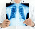 El Colegio Oficial de Médicos de Barcelona (COMB) pide que se notifiquen las bajas médicas directamente a las empresas.